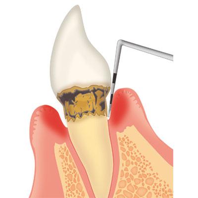 general-dentistry04_2