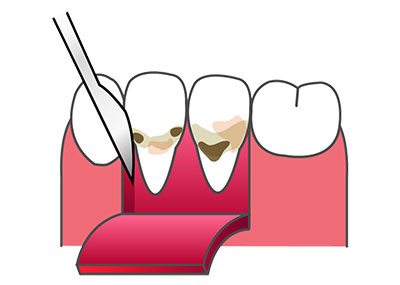 general-dentistry04_3
