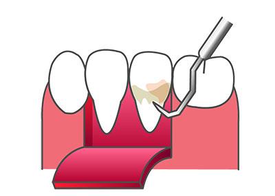 general-dentistry04_4