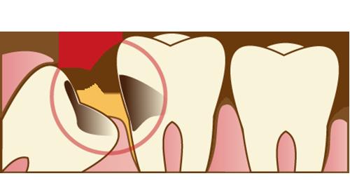 oral-surgery01_2