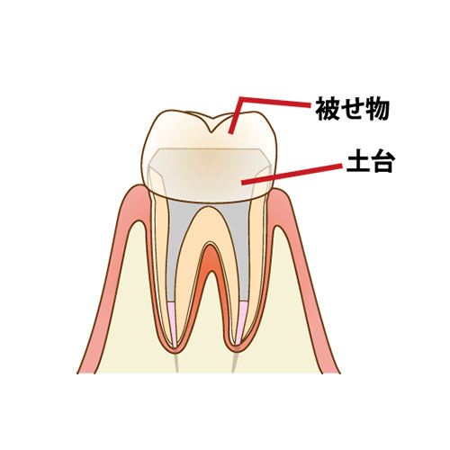 tooth-decay-flow2_01